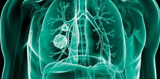 O que é Fibrose Cística?5017
